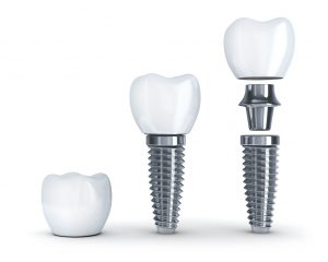 What makes a patient perfect for dental implants in Beachwood?