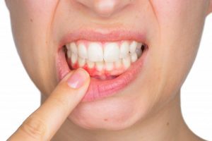 A woman pulling her lip to expose her gums.