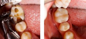 Teeth before and after receiving tooth-colored fillings.