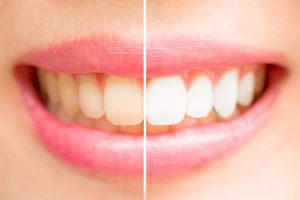 A smile before and after teeth whitening.
