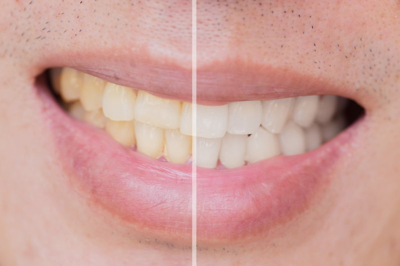 Closeup of smile before and after treatment for stained teeth